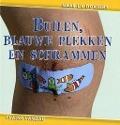 Bekijk details van Builen, blauwe plekken en schrammen